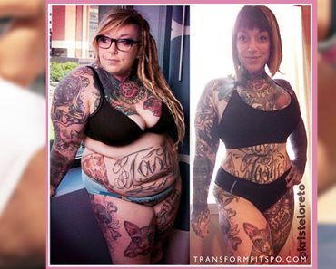 non surgical weight loss
