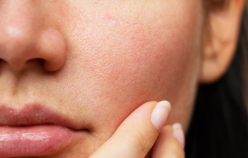 Can I Quickly Reduce Face Fat?